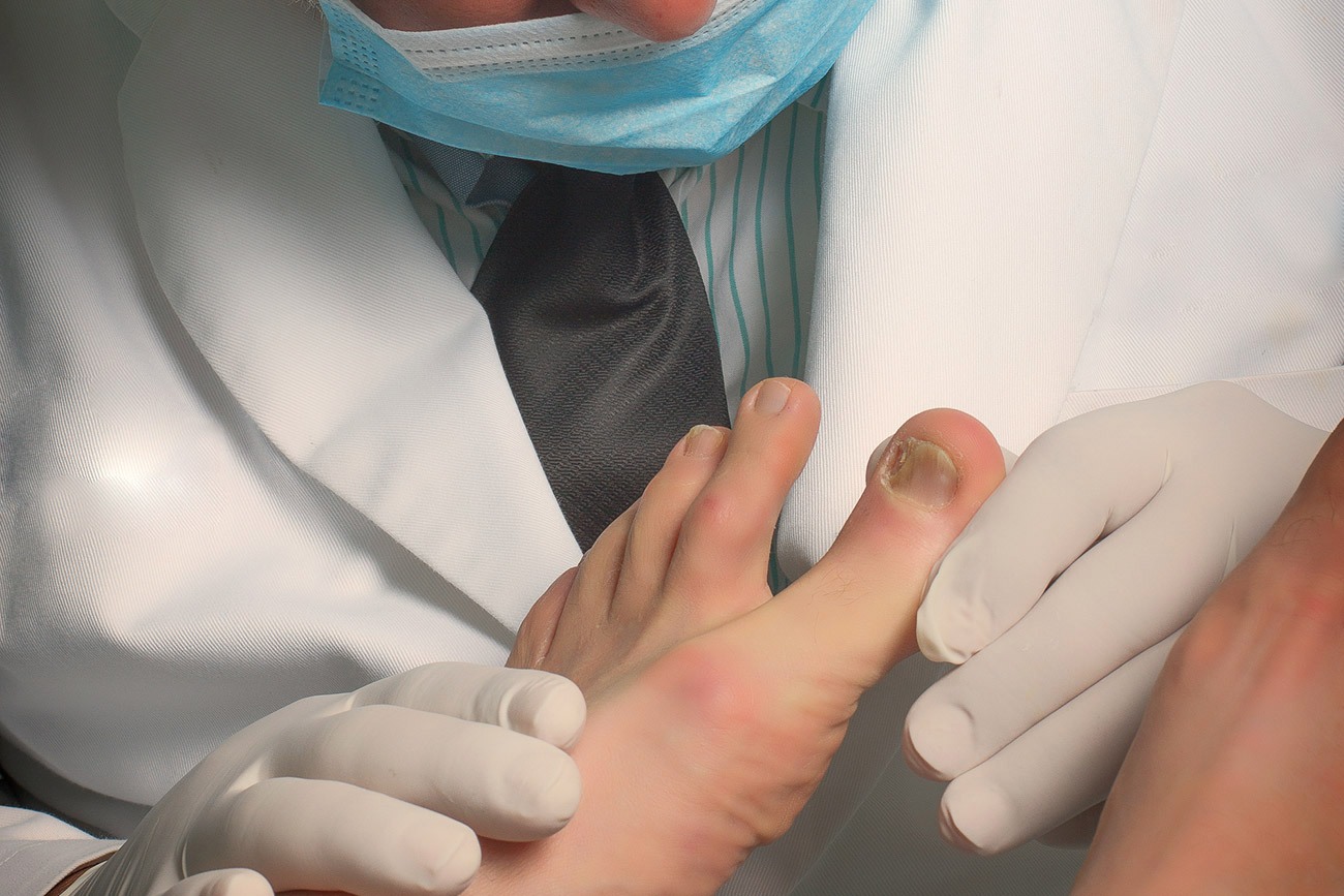 Treatment for ingrown nail