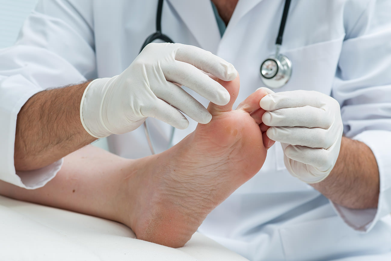 Medical Consultation for feet